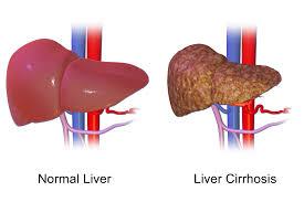 Superfoods For Liver Detox