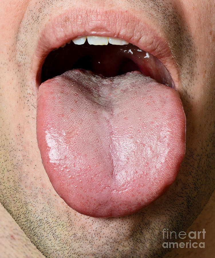 Spots on Tongue